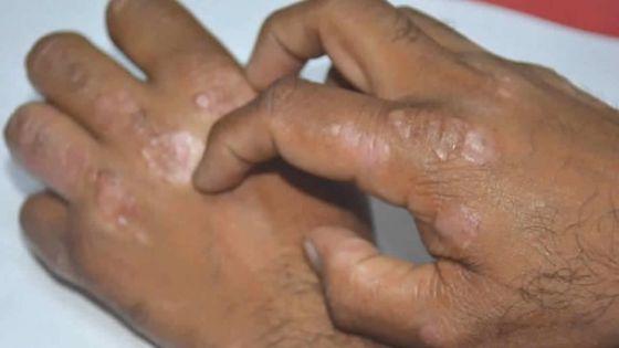 Santé - Maladies de peau : plus de9 000 cas par mois en 2019