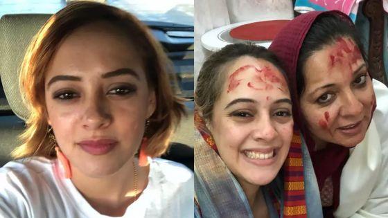 Hazel Keech : l'actrice d'origine mauricienne se fait refaire le nez