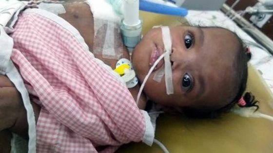 Opération réussie de Cléanne : une première mondiale pour l'équipe médicale de Narayana Health