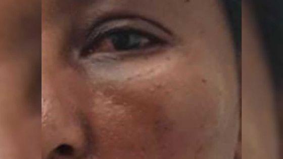 Après une agression, elle perd l'usage d'un œil -Caroline : «J'ai peur de perdre mon emploi»