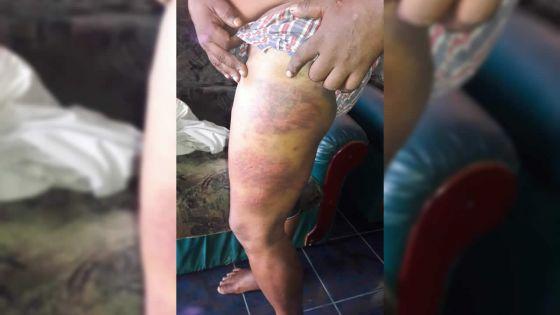 Allégation de brutalité policière : son corps couvert d'ecchymoses