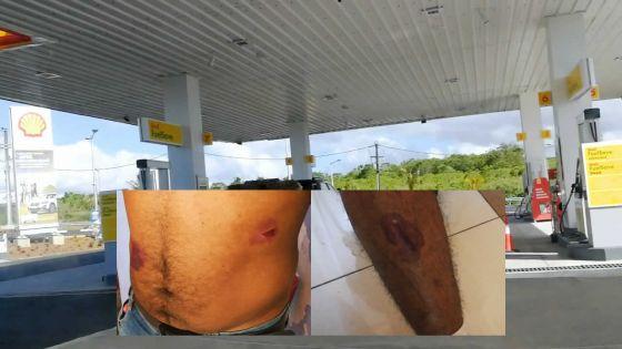 Pour Rs 100 d'essence : un conducteur dit avoir été agressé par quatre pompistes