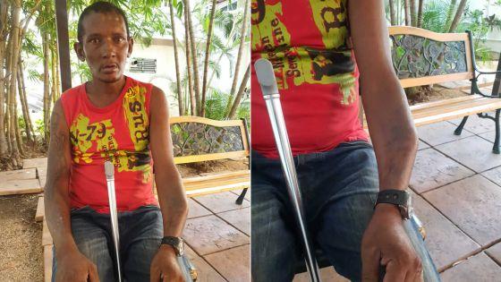 Sa pension supprimée : un homme invalide depuis 11 ans se retrouve sans eau ni électricité