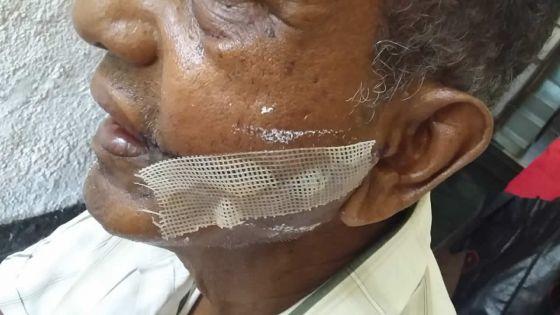 Pour une simple histoire de pain : un sexagénaire agresséau visage à coups de cutter