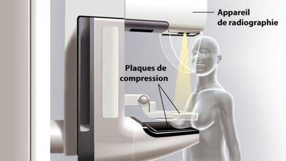 Appareil de mammographie en panne : une centaine de patientes dans l'incertitude