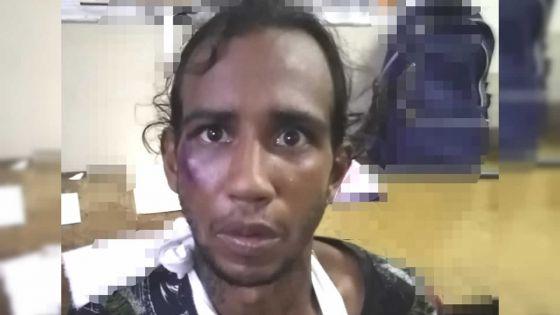 Auteur d'un vol sur un Bangladais : le bras plâtré, un suspect s'enfuit du poste de police de Goodlands