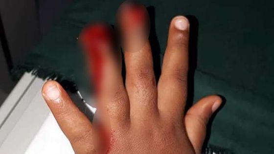 Une fillette de trois ans blessée à la main : bras de fer entre les parents et l'établissement scolaire