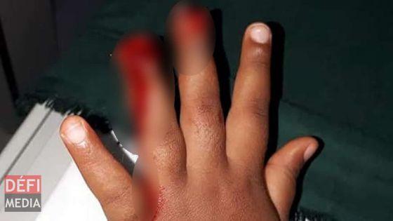 Fillette blessée dans une garderie : la direction de l'établissement s'explique