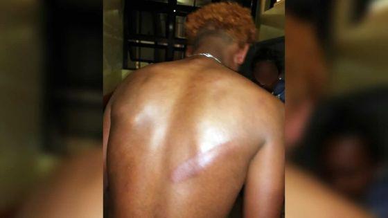 Grande-Pointe-aux-Piments : un jeune homme allègue avoir été brutalisé par une équipe de l'Adsu