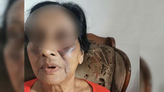 Attaquée en plein sommeil par un intrus :«Monn sap dan lamor», raconte la veuve de 71 ans