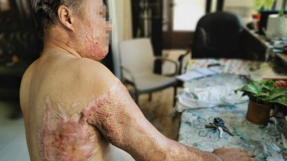 Attaqué à l'acide en deux occasions et aucune arrestation : Gaëtan, 68 ans, vit dans la peur