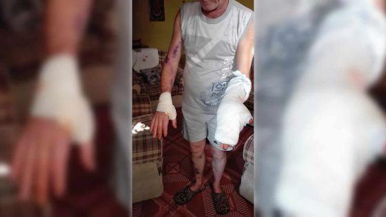 Tentative de vol : un Belge agressé au couteau dans sa cour