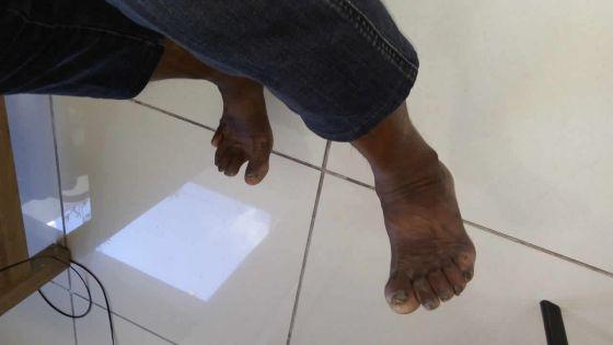 À l'hôpital Dr A.G Jeetoo : admis pour une égratignure, il meurt d'une septicémie