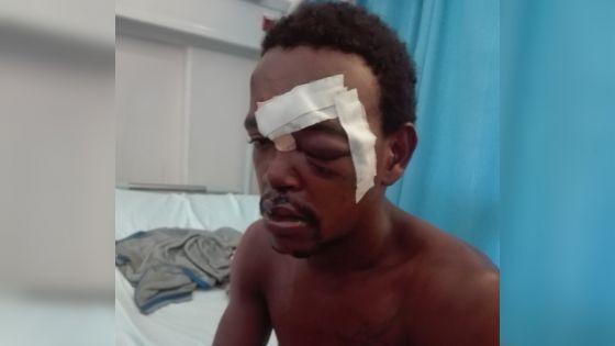 Vol allégué dans une salle de gym : le voleur présumé ligoté et agressé par six personnes