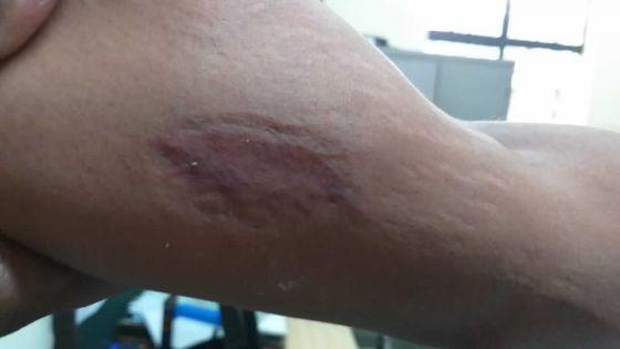 À Bel-Air/Rivière-Sèche : un policier mordu et sa collègue priseà la gorge lors d'une intervention