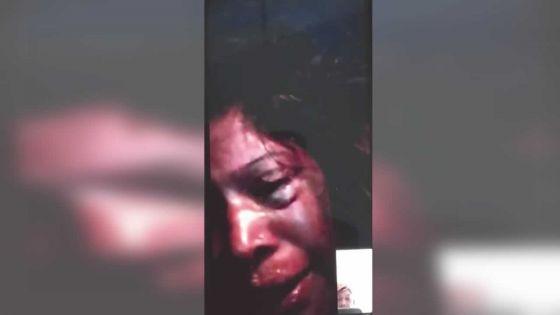 Filmée en train de se faire agresser par son époux : «Mo ex inn provok mo mari», lâche la femme