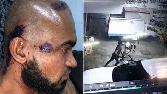 À Cassis : un agent de sécurité d'un supermarché sauvagement agressé
