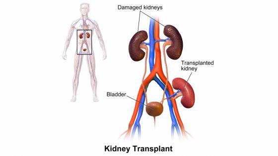 Transplantation rénale : les patients attendent depuis un an