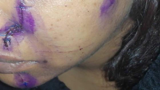 À Pailles : une jeune femme sauvagement agressée par son époux