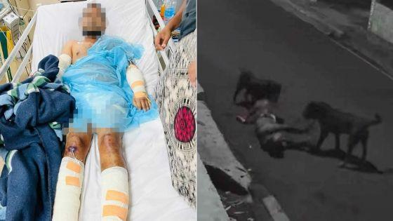 Attaque sauvage par deux rottweilers en pleine rue, dimanche soir : la victime a peu de chances de recouvrer l'usage de son bras droit