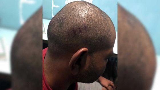 Brutalité policière alléguée -Me Anoup Goodaree : «Ce n'est pas à la police de faire justice»