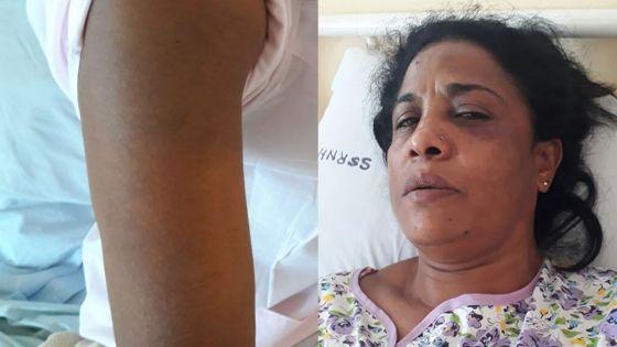 Une femme de 45 ans agressée à coups de casque - La fille de la victime : «Linn tromatize, linn gagn enn sok»