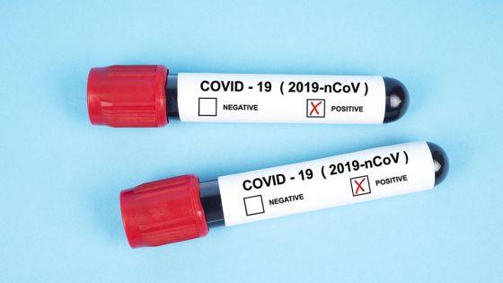 Covid-19 : 52 nouveaux cas positifs enregistrés ce lundi, 6 à l'hôpital ENT