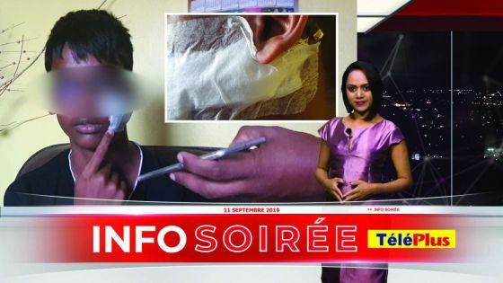 Agressé au cutter par un camarade : 20 points de suture au visage pour un collégien