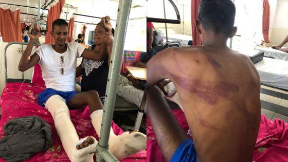 Un jeune homme allègue avoir été victime de brutalités policières