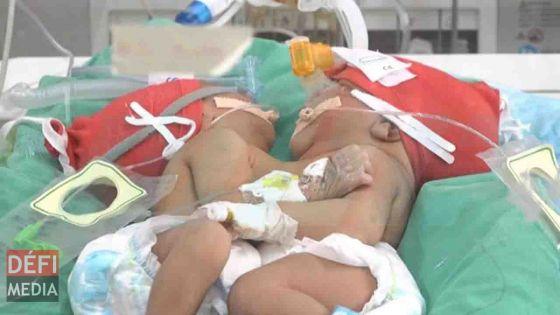 Jumelles siamoises : l'état de santé des bébés stable