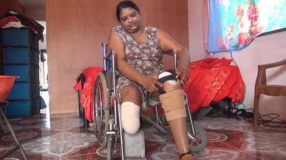 Amputée des deux pieds : le combat de Venita Purbhoo pour marcher à nouveau