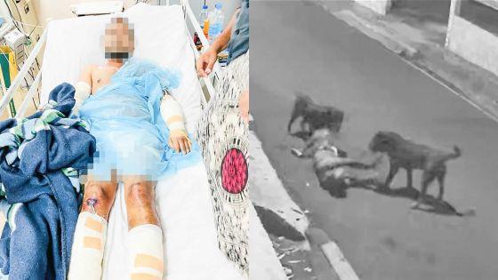 Attaqué par deux Rottweilers en pleine rue au quartier Ward 4 dimanche soir - la victime: «J'ai cru que les chiens allaient me dévorer»