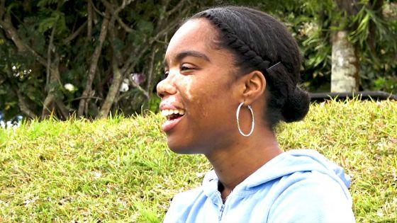 «Les regards inquisiteurs, les inconnus qui vous dévisagent» : le quotidien de Géraldine, atteinte de vitiligo