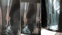 Accident de la route : aucune intervention chirurgicale malgré un tibia fracturé depuis neuf mois