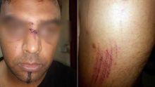 Dans un vidéoclub : le gérant tabassé et dépouillé par deux malfrats