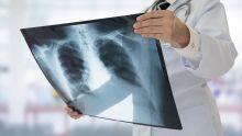 En 2017 : plus de 10 % des décès liés aux maladies respiratoires
