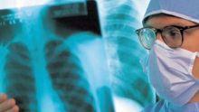 Importation de produits médicaux de la marque «FUJIFILM» : mise en demeure servie à sept compagnies médicales
