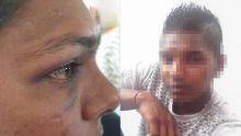 Allégation de viol à Dubreuil - Pooja : «Li dir mwa pa bouze, sinon mo pik to garson»