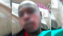 Un cracheur de feu brûlé au visage : le ministère du Travail ouvre une enquête