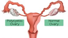 Polycystic Ovary Syndrome : Complicated MedicalCondition but Can Be Treated