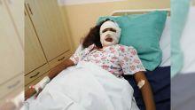 Après une rupture : une jeune femme défigurée au cutter par son mari