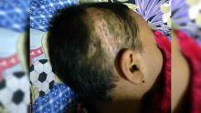 17 points de suture à la tête : sa fille blessée pendant la récré, elle est révoltée par l'attitude de l'école