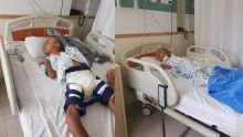 Moozamir, 15 ans et qui vit comme un bébé, opéré avec succès