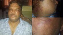 «Je n'ai jamais été battu par ma femme», affirme Mahen Gowressoo après les photos de lui postées sur Facebook