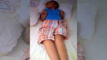 Il est âgé de 10 ans et tétraplégique: Mosamer a besoin de Rs 700 000 pour son opération