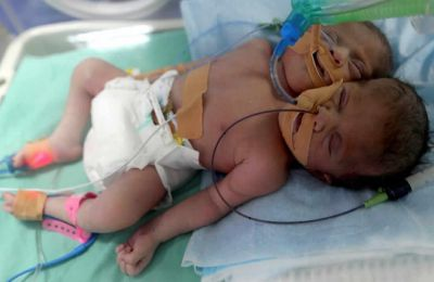 Un bébé né avec deux têtes