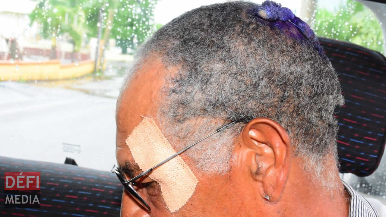 Le maçon a reçu de violents coups à la tête et au visage.